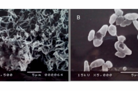 Scanning electron microscopy (SEM) images of Streptotoccus mutans biofilms. Biofilms emerged after 24-hour incubation in 12-well plates.